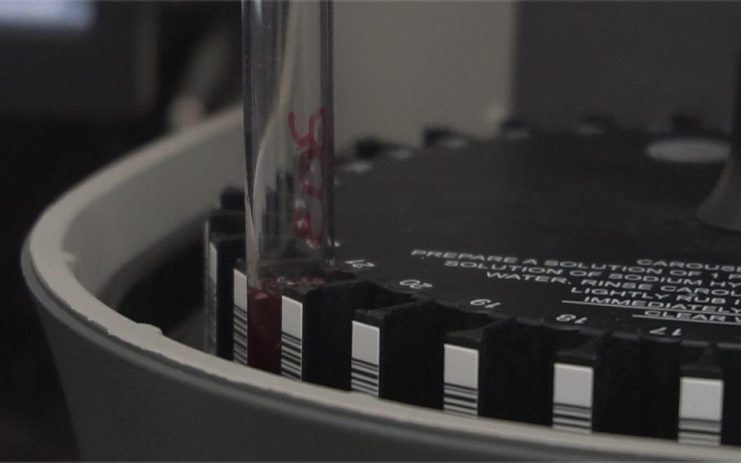 Inicia proyecto de Citometría de Flujo en Cáncer